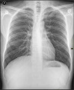 une radio des poumons