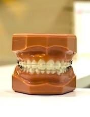 Les frais de dentiste deviennent moins coûteux pour les Français.